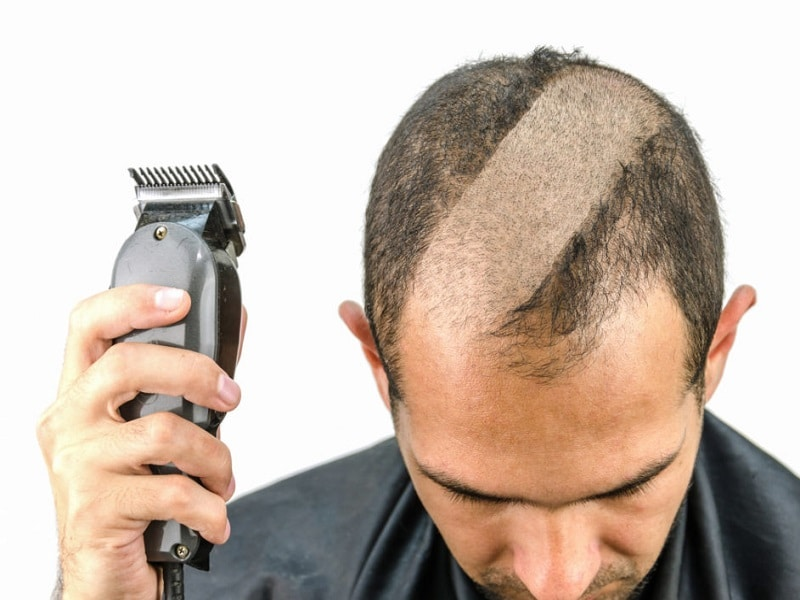 Top 7 Best Clippers For Bald Head Reviews