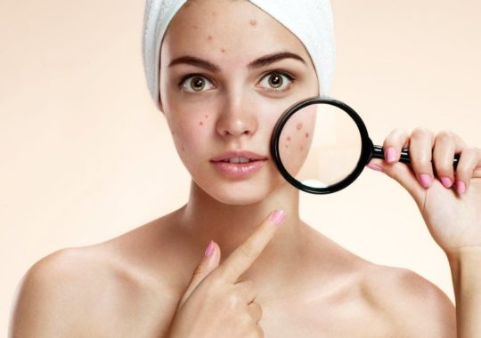 Top 7 Best Body Lotions For Acne-Prone Skin
