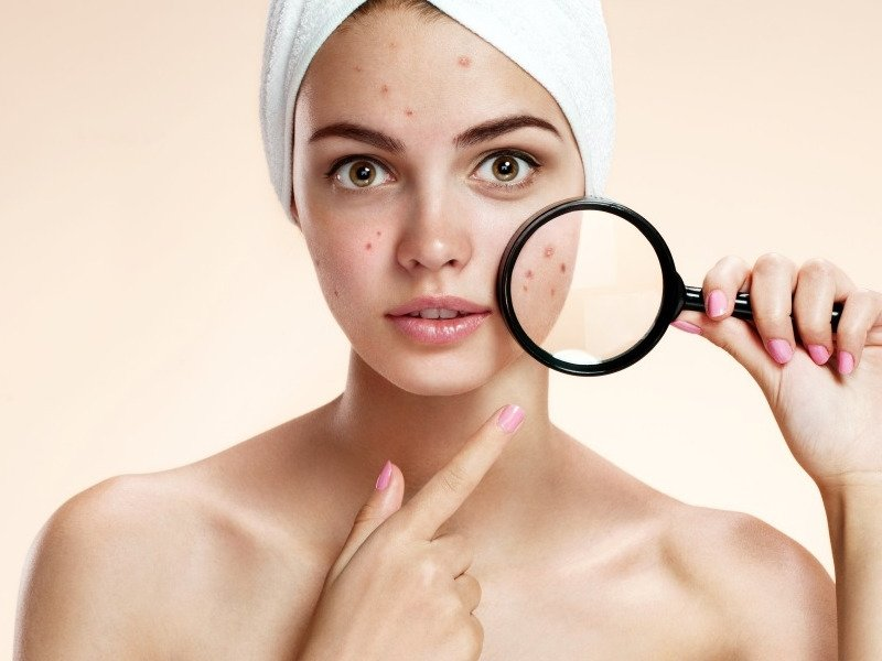 Best Body Lotions For Acne-Prone Skin